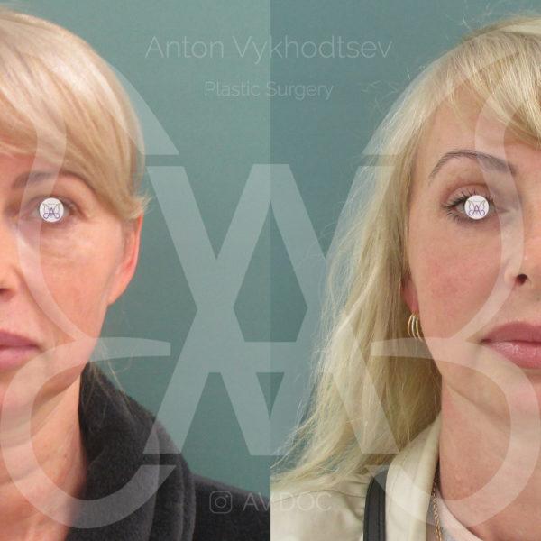 Подтяжка лица — фото работ