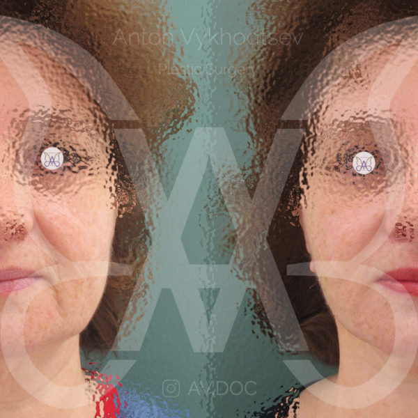 Подтяжка лицa — фото работ