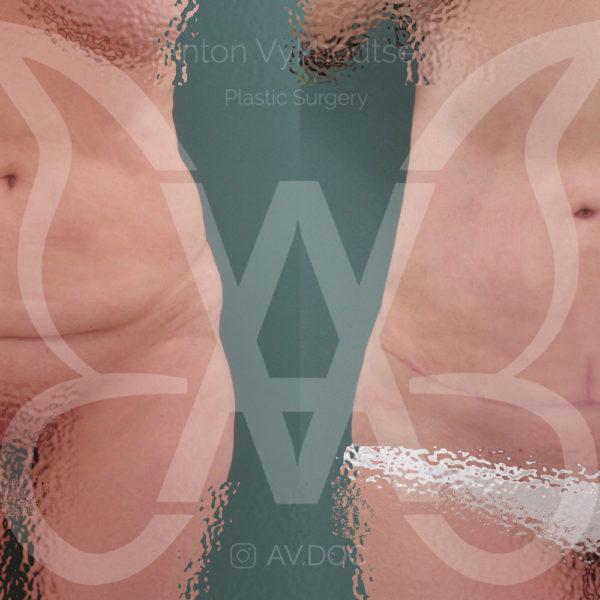 Абдоминопластика — фото работ