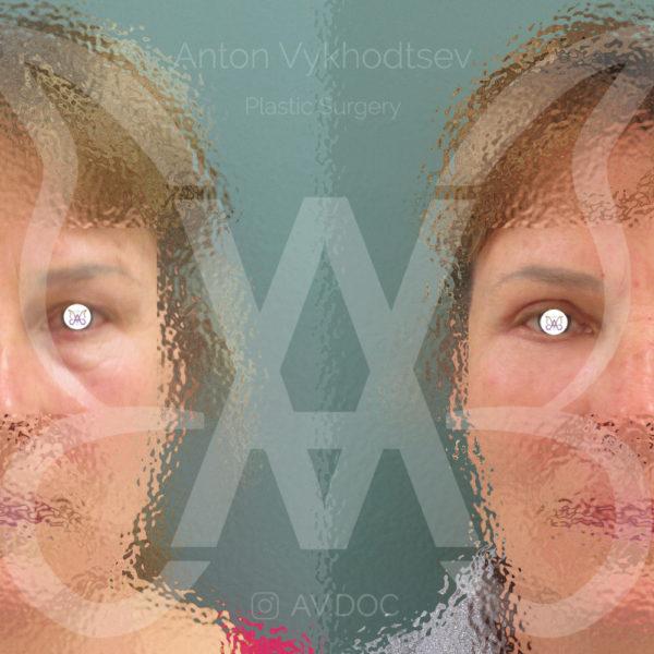 Блефаропластика + липофилинг лица — фото работ
