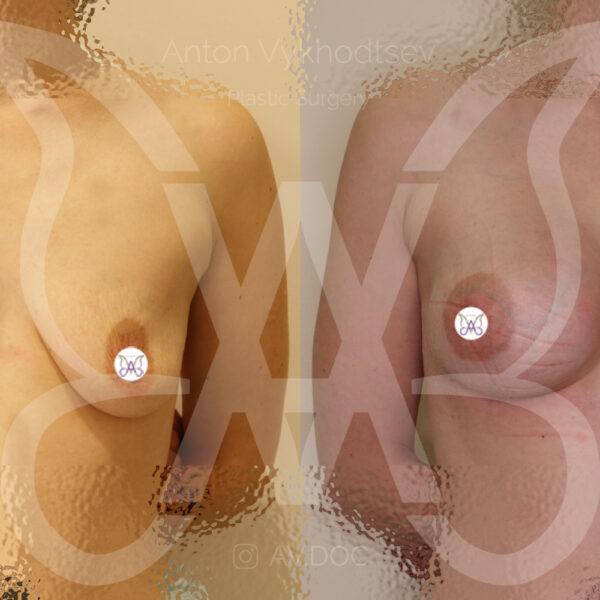Увеличение груди — фото работ