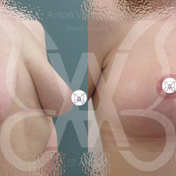 Подтяжка груди — инвертированный Т — фото работ